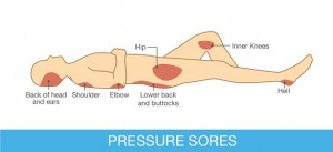 Pressure sores area