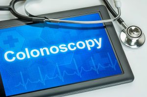 colonoscopy-524701836