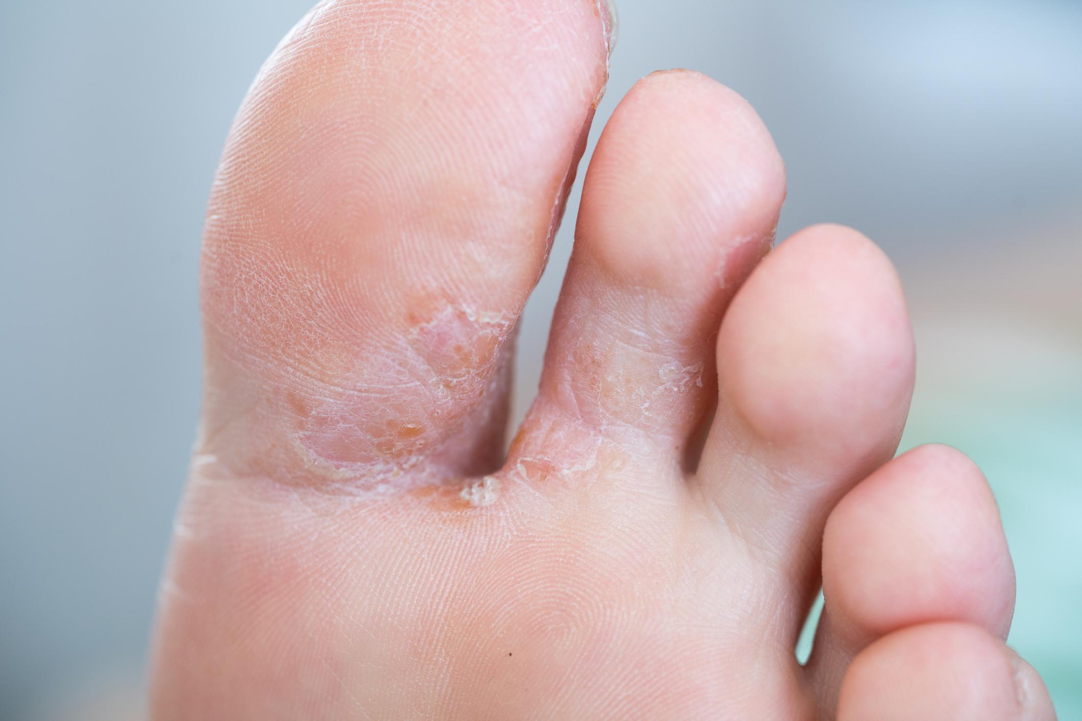 athletes foot image