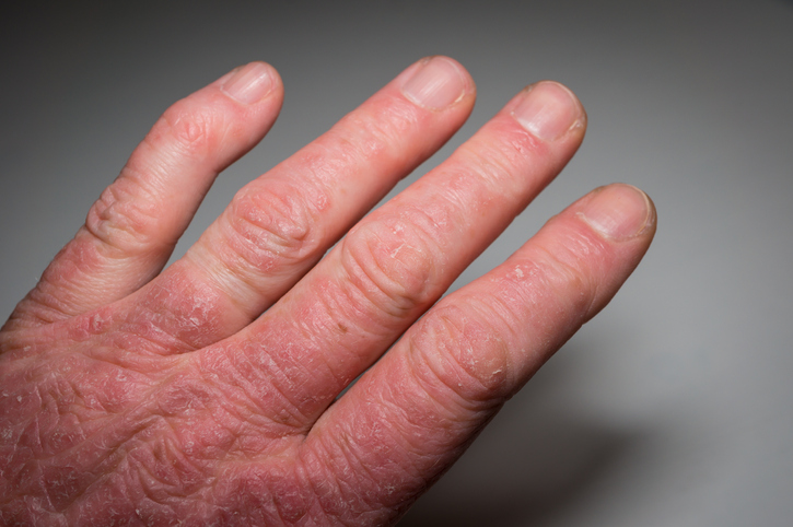 Learn The Facts About Psoriatic Arthritis Health Beat